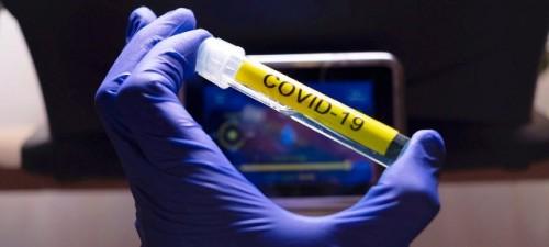 Es vital que la respuesta de los países de América al coronavirus incluya el tratamiento de las enfermedades no transmisibles